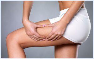 Cellulite treatment